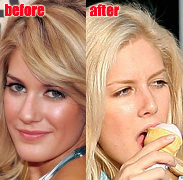 heidi montag before and after plastic surgery 2010. Heidi Montag Plastic Surgery