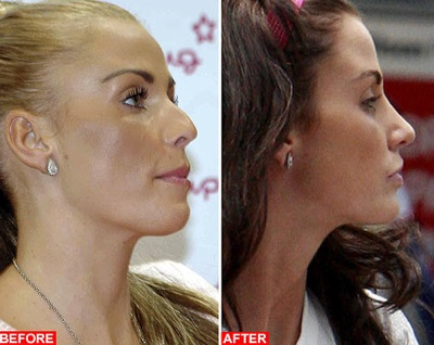 Nose Plastic Surgery Cost On Katie Price Plastic Surgery